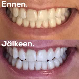 hampaiden valkaisu kokemuksia
