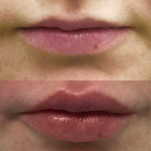 huulten täyttö kokemuksia
