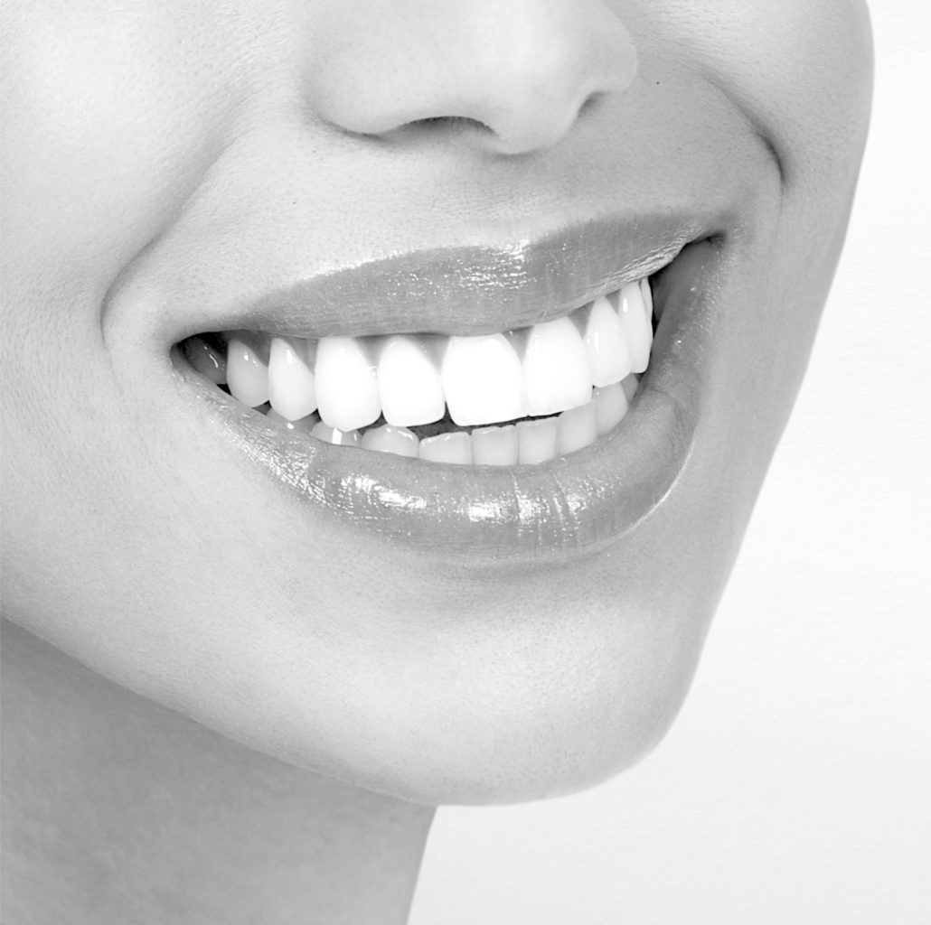 hampaiden valkaisu Pori ja Rauma